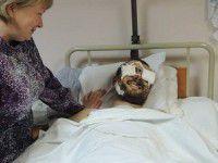 Бойцу потерявшему обе руки, требуется в Запорожье врач