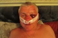 В милиции завели дело по факту избиения лидера запорожского «Правого сектора»