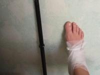 В Запорожской области депутат попал в больницу по дороге на работу