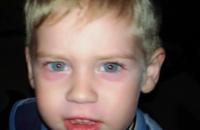 В запорожском детсаду малыша избила воспитательница