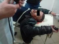 Запорожцу проломили голову кирпичом возле собственного подъезда