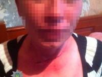 Запорожец пытался перерезать горло жене на глазах у детей