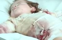 Обгоревшую малышку будут лечить в Америке – цена вопроса 70 тысяч долларов