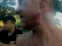 В центре Запорожья мужчине порезали лицо из-за Дня ВДВ