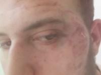 Запорожский журналист о нападении на себя: «Полгода никто из полиции не звонит»