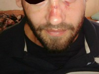 Осужденный перерезал себе горло и вспорол живот по дороге в СИЗО из Запорожья