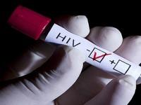 Запорожцев зовут бесплатно пройти быстрые тесты на ВИЧ