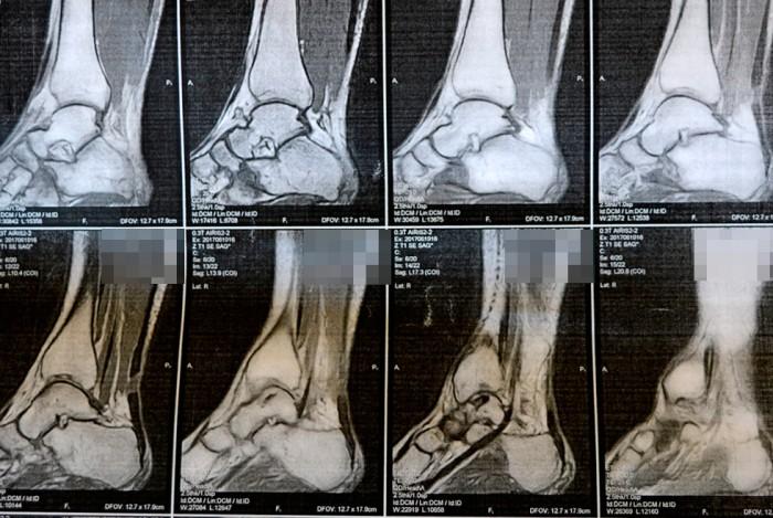 Фото 2_Врачи клиники ортопедии и спортивной травмы вернули радость движения молодой маме из Мелитополя
