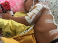 Водитель «Жигулей» без прав, покалечивший 3-летнего малыша, остался безнаказанным