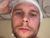 В Запорожской области основателю антикафе разбили голову за замечание