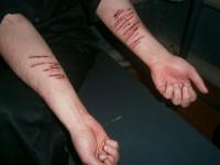 Кровавый бунт в колонии: зачинщик «помог» порезать вены остальным заключенным и напал на тюремщиков