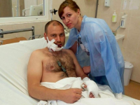 Запорожского солдата доставили с тяжелым ранением лица в соседнюю область