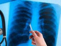 «Это может случиться с каждым»: у работницы запорожского детсада диагностировали туберкулез