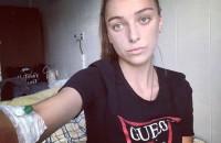 Умерла молодая запорожанка, не дождавшись операции по пересадке печени