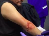 В Запорожье битами и молотками жестоко избили активиста