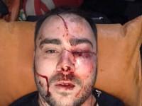 В полиции прокомментировали нападение на главу запорожской «Автоевросилы»