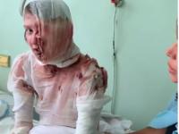 Задержали и судят: началось заседание против запорожца, облившего кипятком спящую девушку