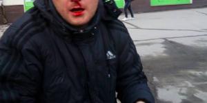 В Запорожье разбили нос неудачливому карманному вору