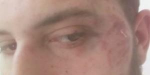 """Запорожский журналист о нападении на себя: """"Полгода никто из полиции не звонит"""""""