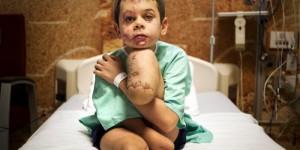 Фото запорожского переселенца, лишившегося обеих ног, заняло первое место на международном конкурсе