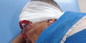 Запорожец лишился глаза, защищая соседку – медики долго не могли оказать помощь
